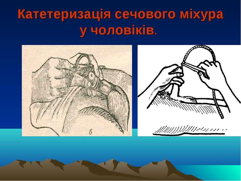 Катетеризація сечового міхура у чоловіків.
