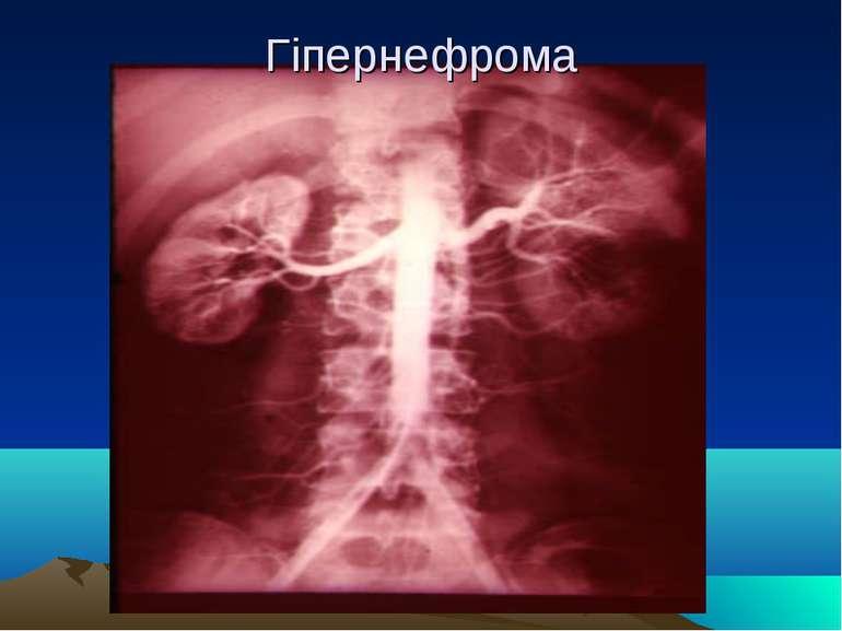 Гіпернефрома
