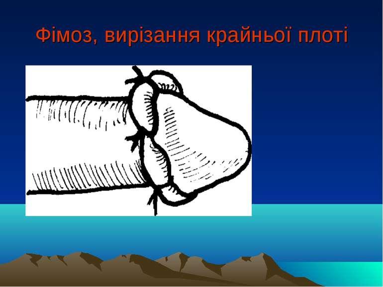 Фімоз, вирізання крайньої плоті