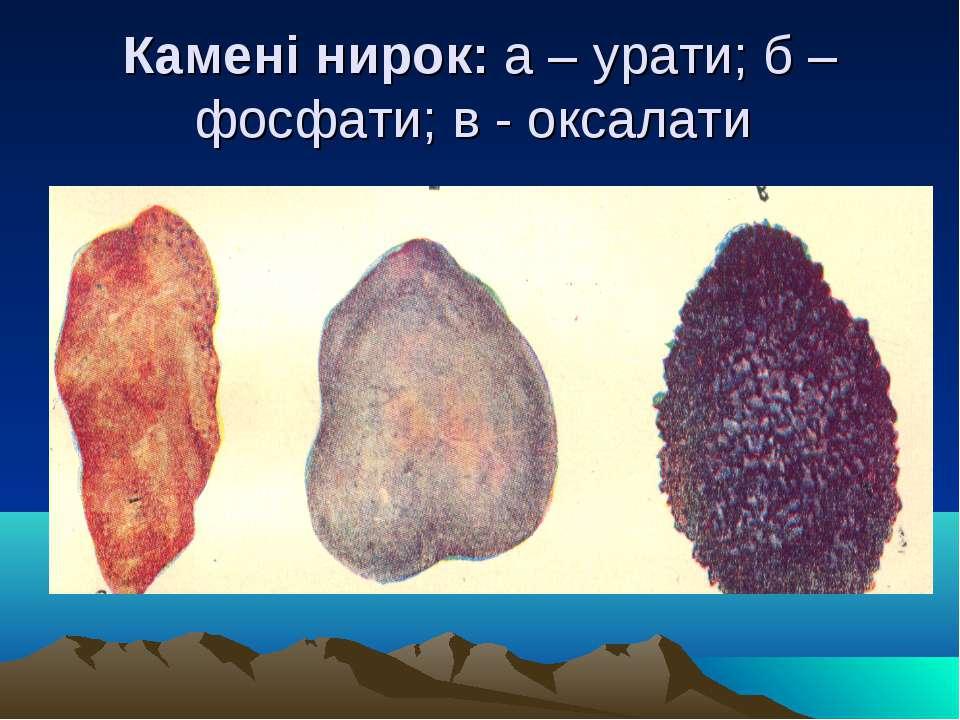 Ураты фосфаты и оксалаты фото мочевых камней