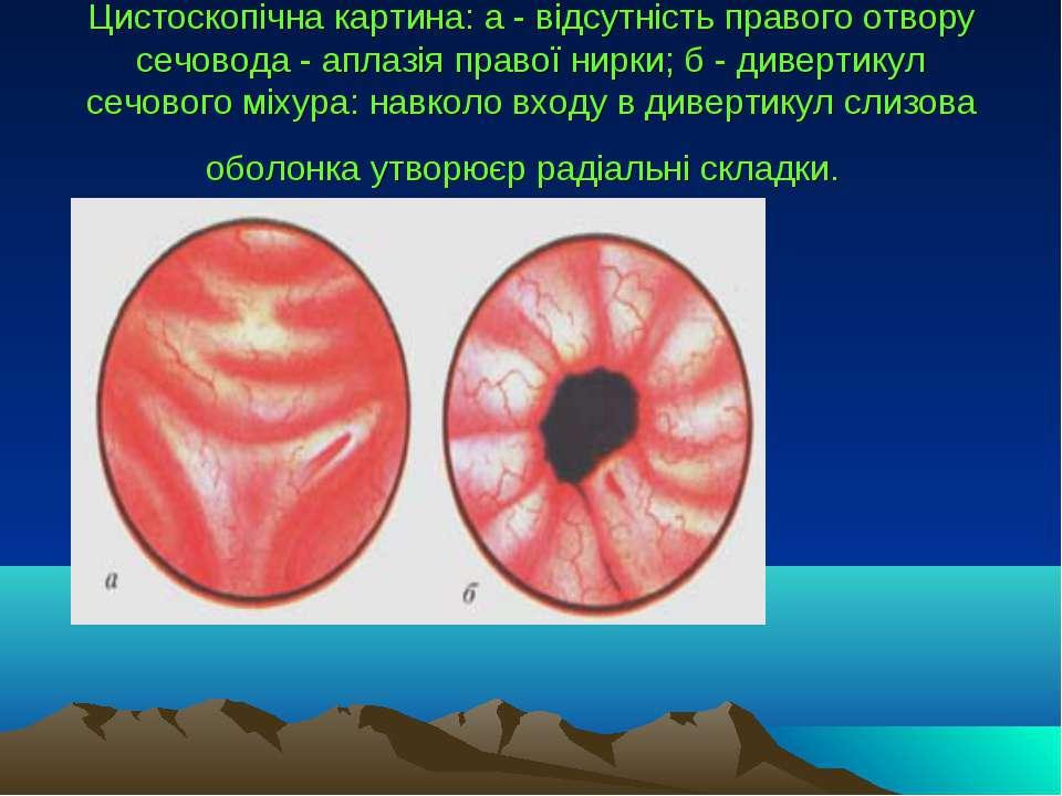 Цистоскопічна картина: а - відсутність правого отвору сечовода - аплазія прав...