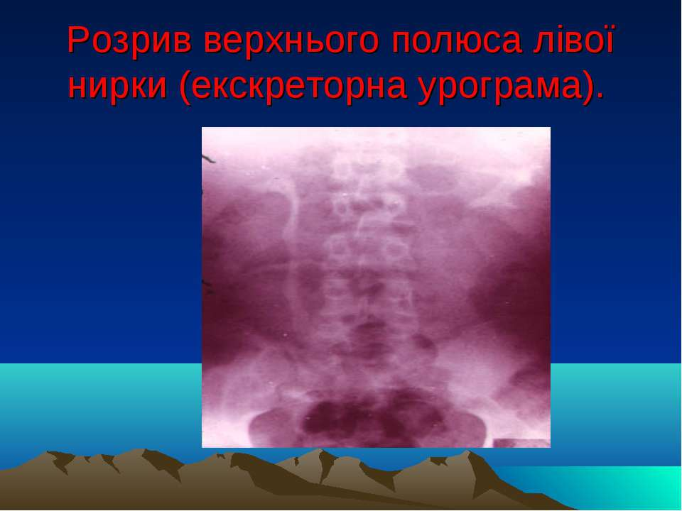 Розрив верхнього полюса лівої нирки (екскреторна урограма).