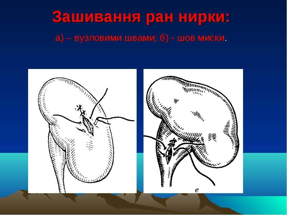 Зашивання ран нирки: а) – вузловими швами; б) - шов миски.