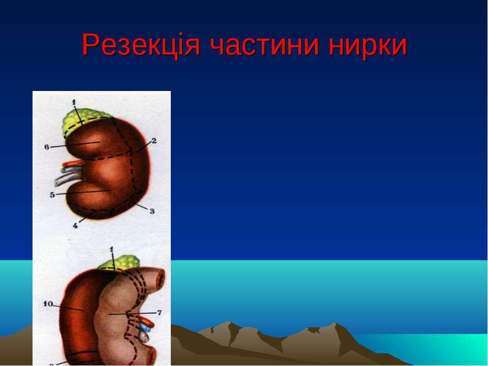 Резекція частини нирки