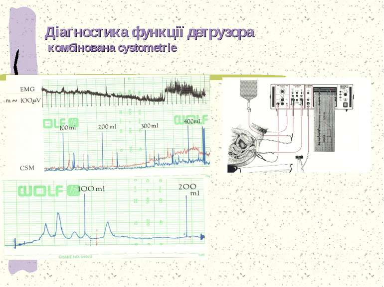 Діагностика функції детрузора комбінована cystometrie