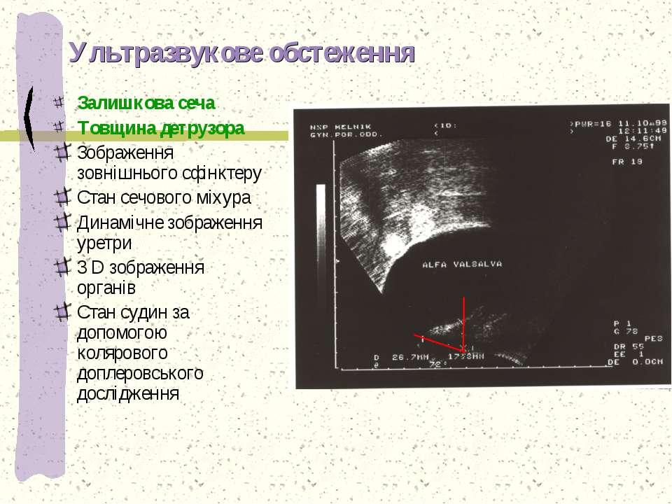 Ультразвукове обстеження Залишкова сеча Товщина детрузора Зображення зовнішнь...