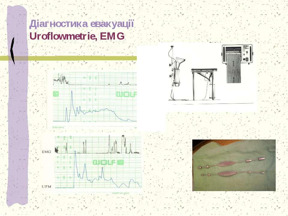 Діагностика евакуації Uroflowmetrie, EMG