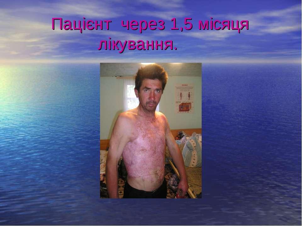 Пацієнт через 1,5 місяця лікування.