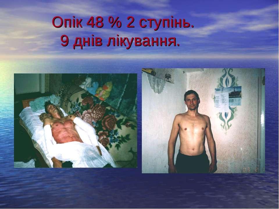 Опік 48 % 2 ступінь. 9 днів лікування.