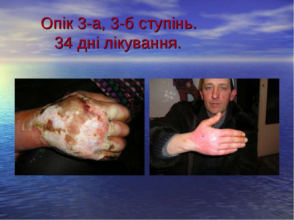 Опік 3-а, 3-б ступінь. 34 дні лікування.