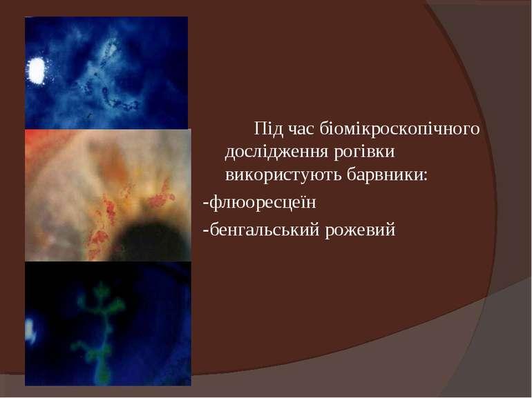 Під час біомікроскопічного дослідження рогівки використують барвники: -флюоре...
