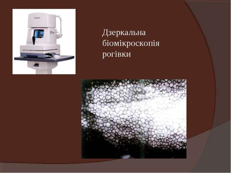 Дзеркальна біомікроскопія рогівки