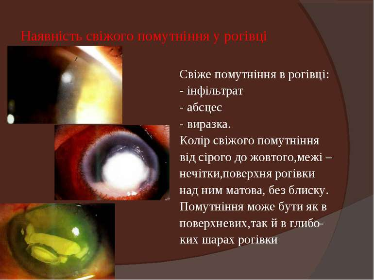 Наявність свіжого помутніння у рогівці Свіже помутніння в рогівці: - інфільтр...