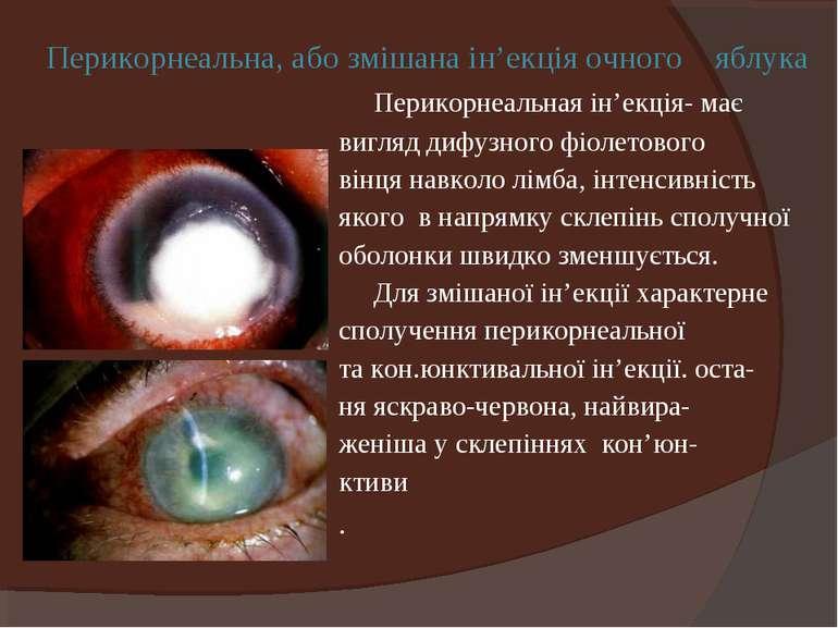 Перикорнеальна, або змішана ін'екція очного яблука Перикорнеальная ін'екція- ...