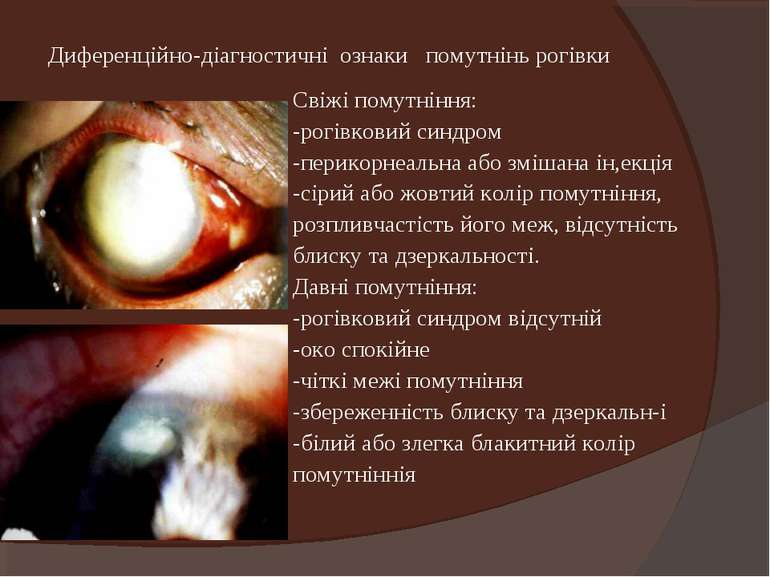 Диференційно-діагностичні ознаки помутнінь рогівки Свіжі помутніння: -рогівко...