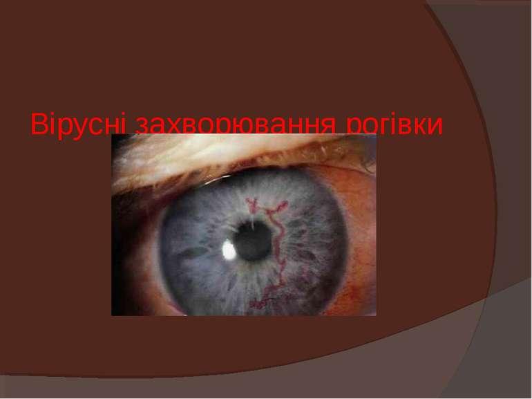 Вірусні захворювання рогівки
