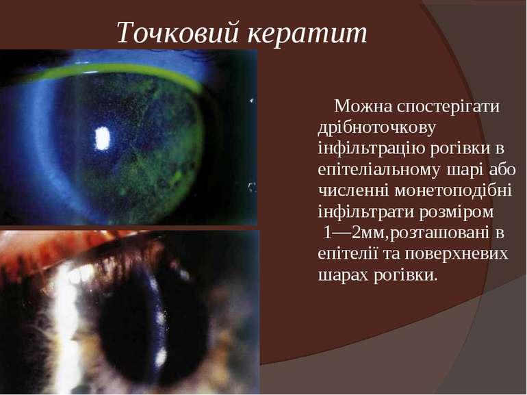 Точковий кератит Можна спостерігати дрібноточкову інфільтрацію рогівки в епіт...