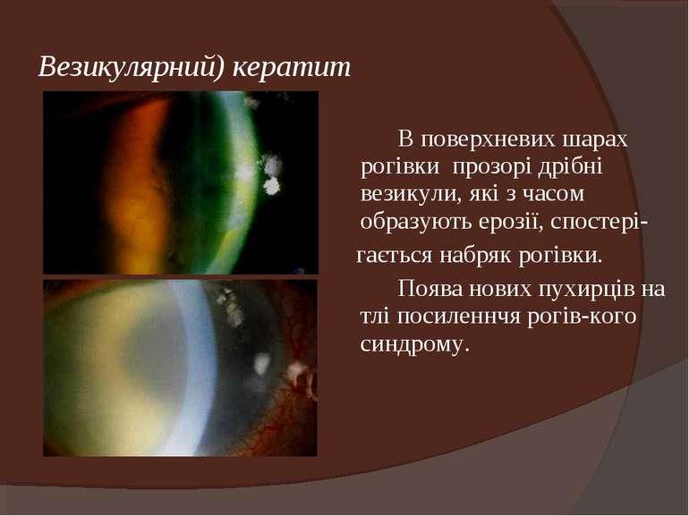 Везикулярний) кератит В поверхневих шарах рогівки прозорі дрібні везикули, як...