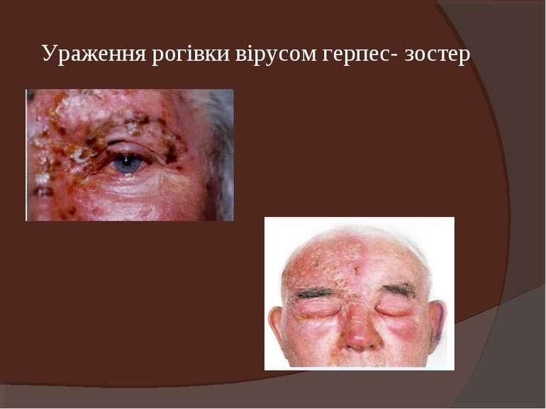 Ураження рогівки вірусом герпес- зостер