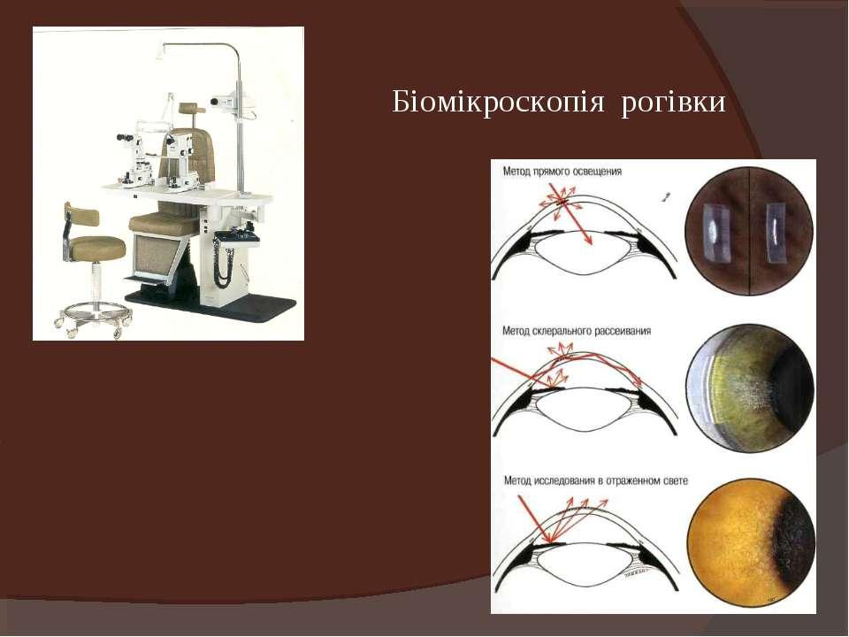 Біомікроскопія рогівки