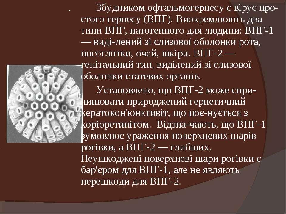 . Збудником офтальмогерпесу є вірус про стого герпесу (ВПГ). Виокремлюють два...