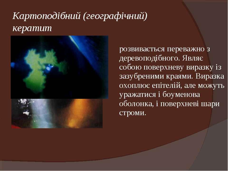 Картоподібний (географічний) кератит розвивається переважно з деревоподібного...