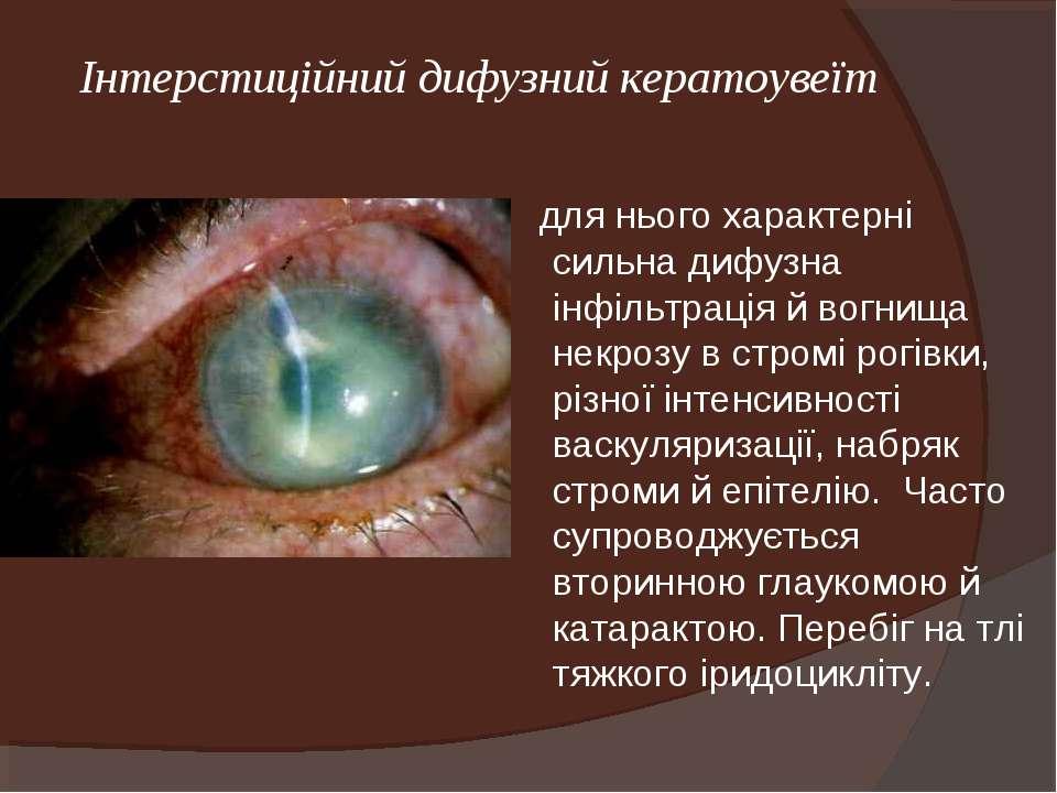 Інтерстиційний дифузний кератоувеїт для нього характерні сильна дифузна інфіл...