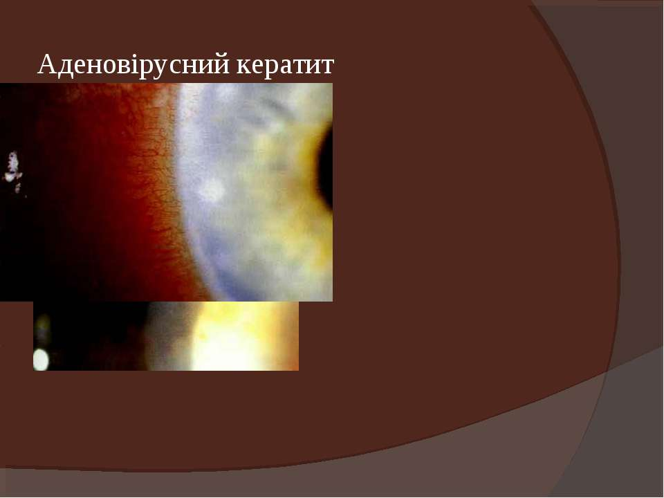 Аденовірусний кератит