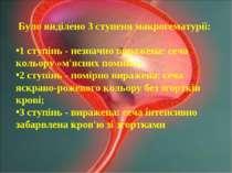 Було виділено 3 ступеня макрогематурії: 1 ступінь - незначно виражена: сеча к...