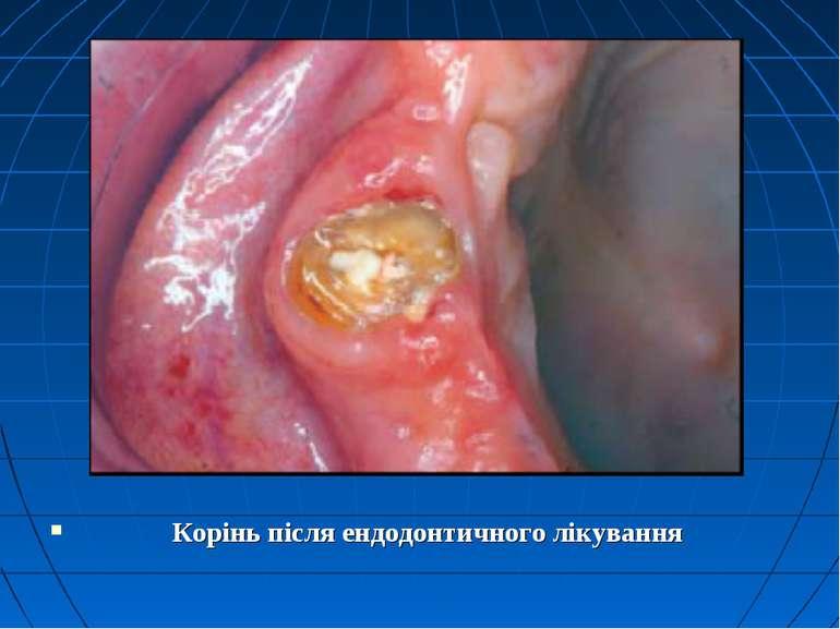 Корінь після ендодонтичного лікування