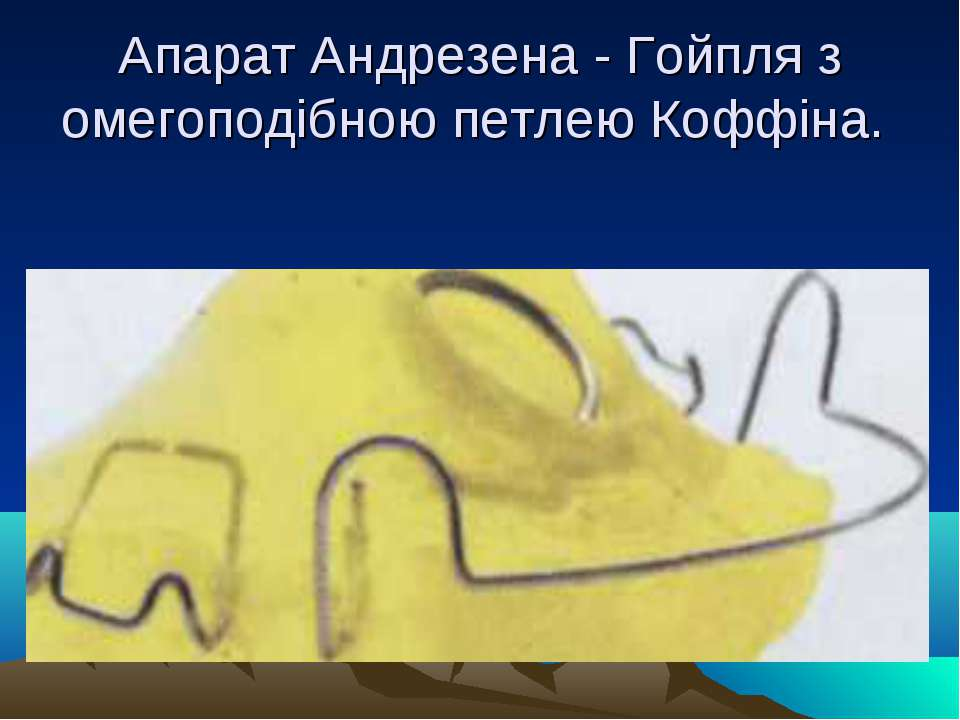 Апарат Андрезена - Гойпля з омегоподібною петлею Коффіна.