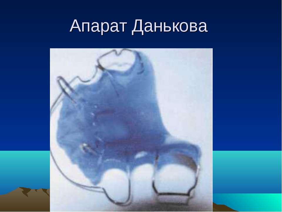 Апарат Данькова
