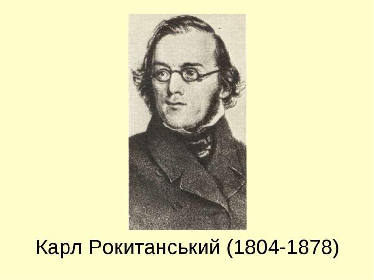 Карл Рокитанський (1804-1878)