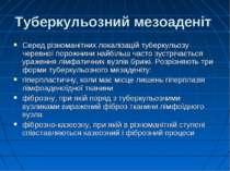 Туберкульозний мезоаденіт Серед різноманітних локалізацій туберкульозу черевн...