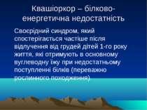 Квашіоркор – білково-енергетична недостатність Своєрідний синдром, який спост...