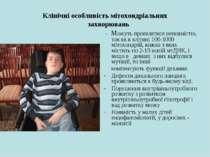 Клінічні особливість мітохондріальних захворювань - Можуть проявлятися неповн...