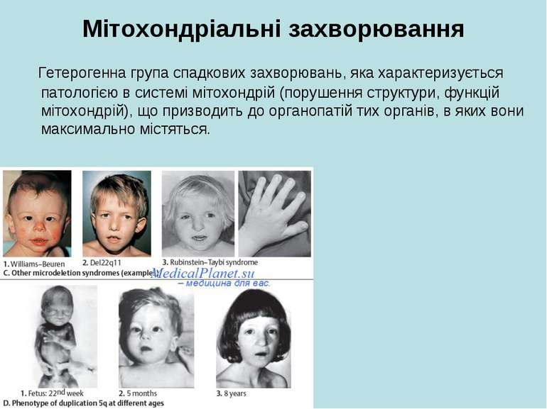 Мітохондріальні захворювання Гетерогенна група спадкових захворювань, яка хар...