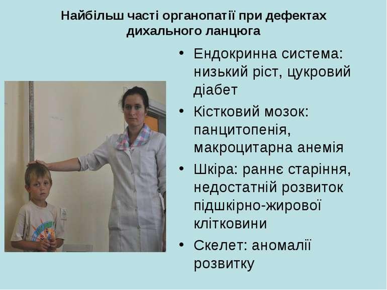 Найбільш часті органопатії при дефектах дихального ланцюга Ендокринна система...
