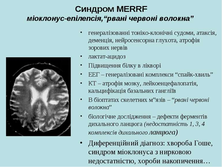 """Синдром MERRF міоклонус-епілепсія,""""рвані червоні волокна"""" генералізованні тон..."""