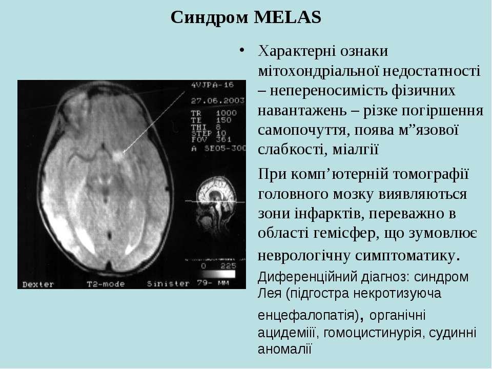 Синдром MELAS Характерні ознаки мітохондріальної недостатності – непереносимі...