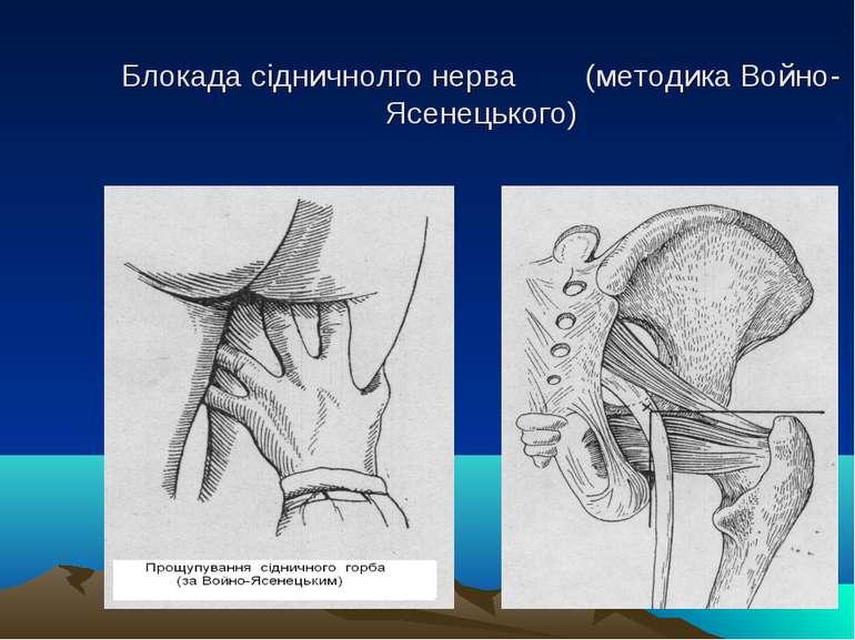 Блокада сідничнолго нерва (методика Войно-Ясенецького)