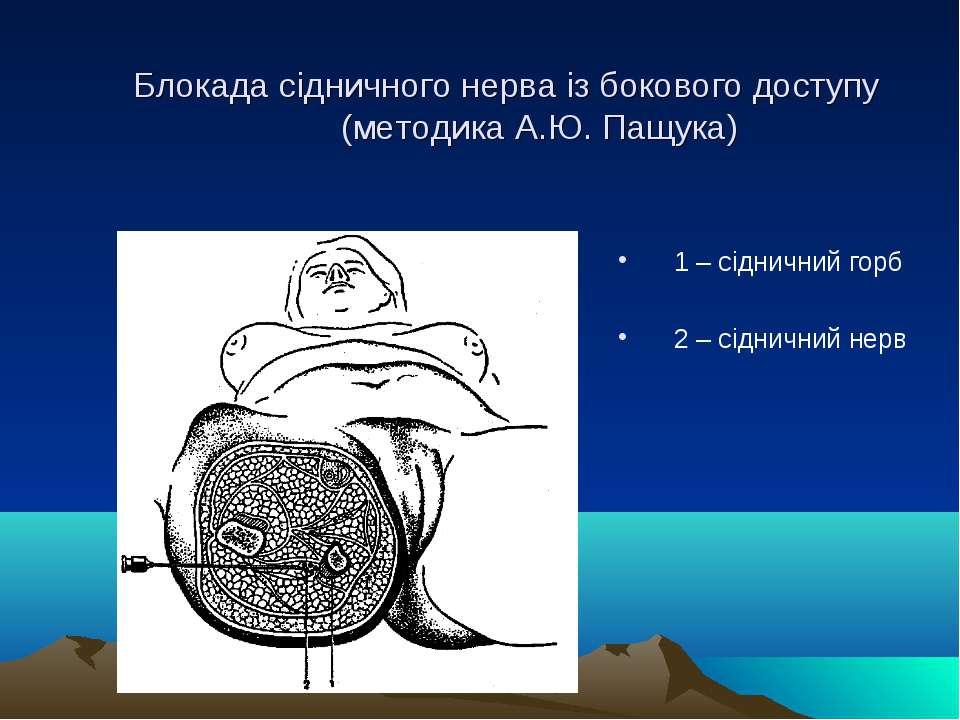 Блокада сідничного нерва із бокового доступу (методика А.Ю. Пащука) 1 – сідни...