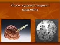 Мозок здорової людини і наркомана