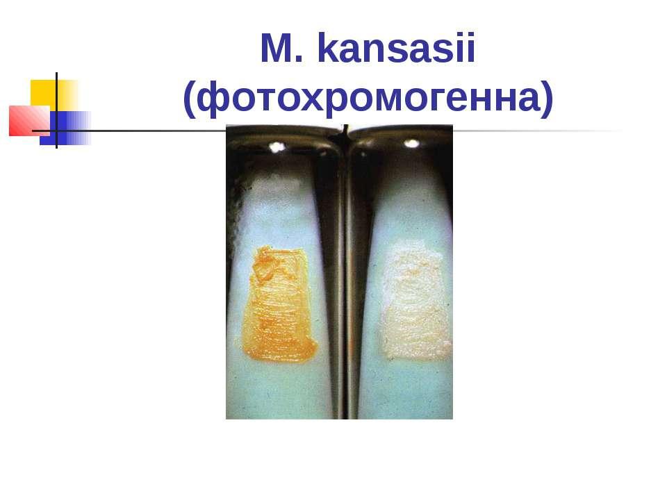 M. kansasii (фотохромогенна)