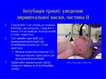 Інтубація трахеї: уведення лярингеальної маски, частина II 5. Підєднайте 5 мл...