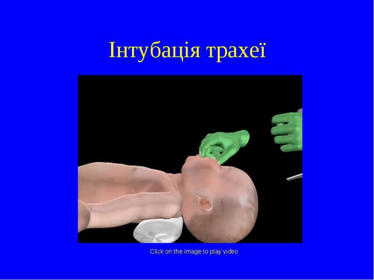 Інтубація трахеї Click on the image to play video