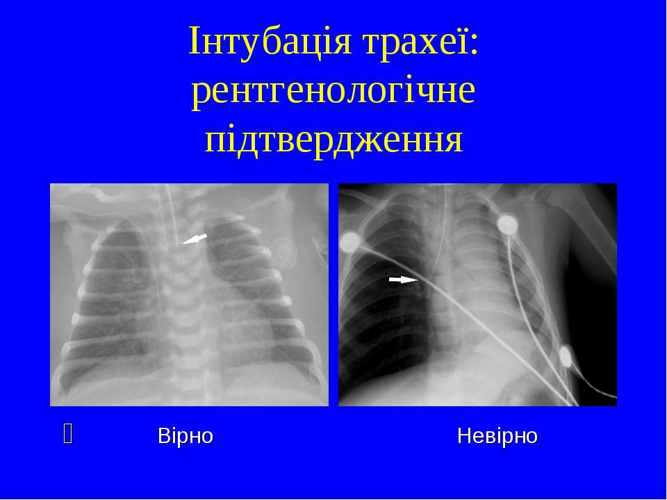 Інтубація трахеї: рентгенологічне підтвердження Вірно Невірно