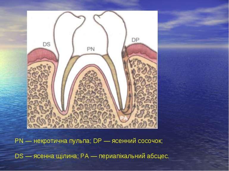 PN — некротична пульпа; DP — ясенний сосочок; DS — ясенна щілина; PA — периап...