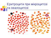 Еритроцити при мікроцитозі та овалоцитозі