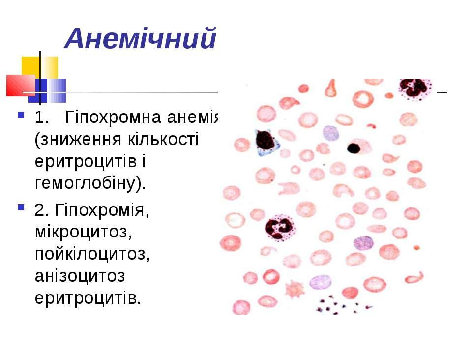 Анемічний 1.Гіпохромна анемія (зниження кількості еритроцитів і гемоглобін...